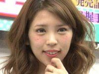坂口杏里が目と鼻を整形して別人レベルの顔に変貌!!中毒レベルの整形で数年後には顔面崩壊!?