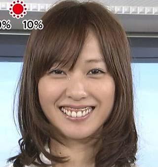 戸田恵梨香 歯茎3