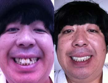 バナナマン日村勇紀の歯 ビフォーアフター写真