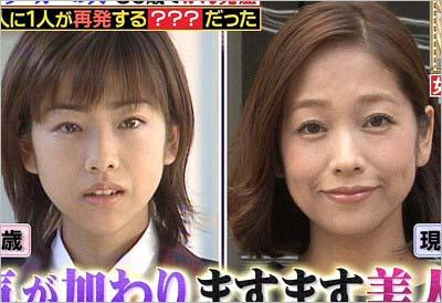 椎名法子が17歳の頃と現在の比較