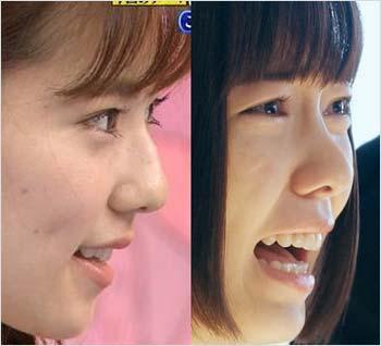 島崎遥香の鼻筋比較写真(左が以前、右が現在)