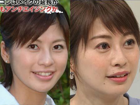カラコン着用ありなし、テレビ朝日・久保田直子アナの比較写真