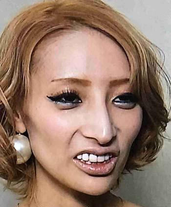 加藤紗里の現在の顔、鼻整形疑惑