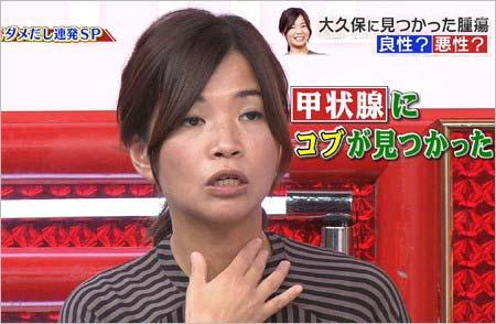 『名医のTHE太鼓判!』出演の大久保佳代子
