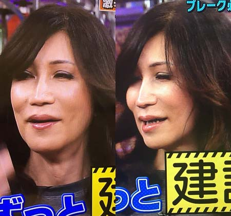 顔面整形中のKABA.ちゃん