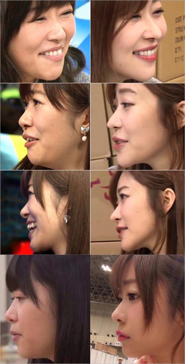 指原莉乃の鼻の変化、整形疑惑検証画像