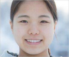 女子スキージャンプ高梨沙羅選手