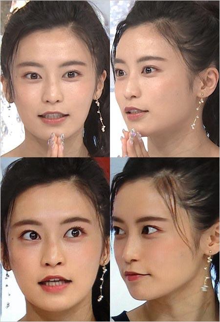 おしゃれイズム出演時の小島瑠璃子、美容整形疑惑の検証写真