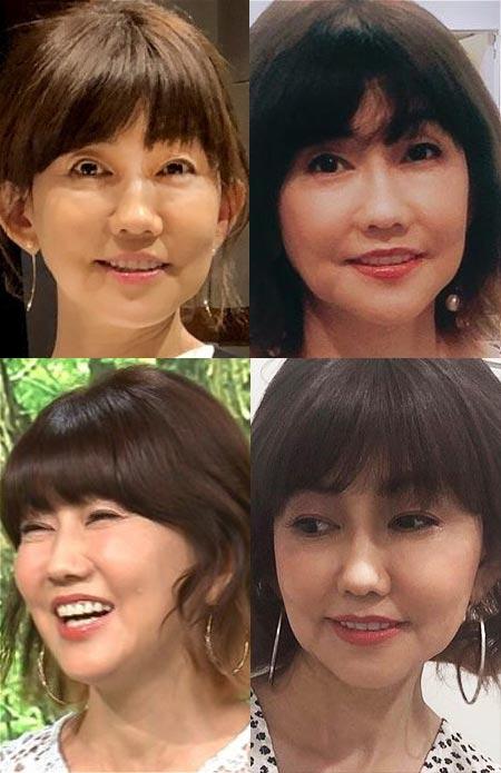 松本伊代の顔がパンパン、美容整形疑惑の検証写真